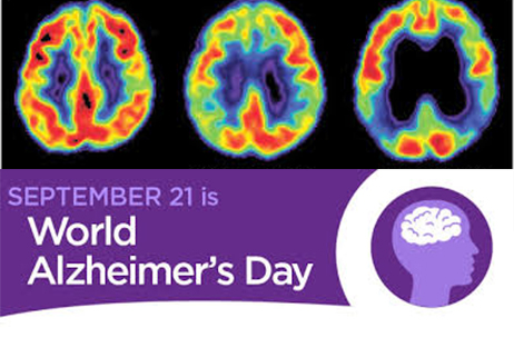 Dementia research changes lives - #PassItOn this World Alzheimer's Day 21 September